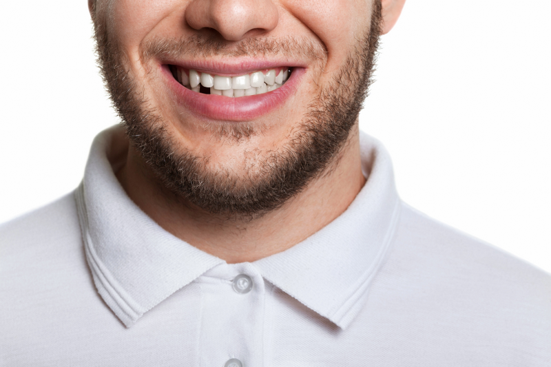 Missing Teeth Treatment
