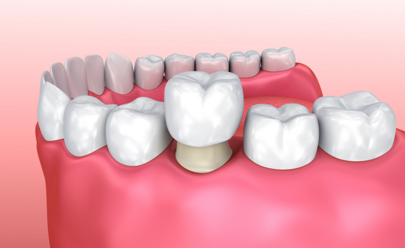 Dental Crowns in Notting Hill